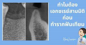 เอกซเรย์สามมิติรากฟันเทียม