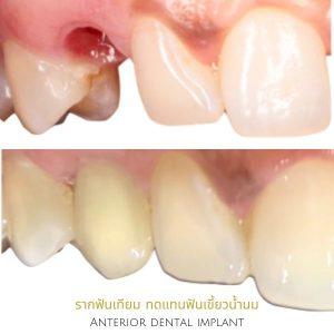 รากฟันเทียม ฟันเขี้ยวน้ำนม