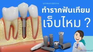 ทำรากฟันเทียมเจ็บไหม