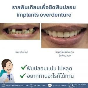 รากฟันเทียมยึดฟันปลอม