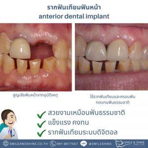 ฟันเทียมฟันหน้า