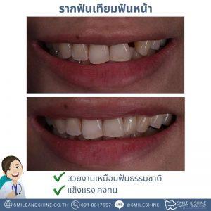 รากฟันเทียมฟันหน้า-หมอนลัท