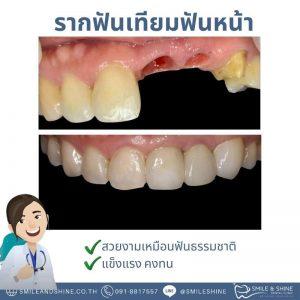 รากฟันเทียมฟันหน้า-หมอนลัท2