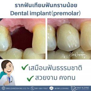 รากฟันเทียมกรามน้อย