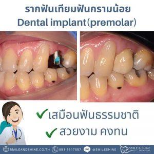 รากฟันเทียมกรามน้อย-หมอแอ้น