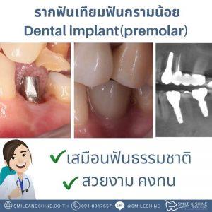 รากฟันเทียมกรามน้อย-หมอแอ้น2