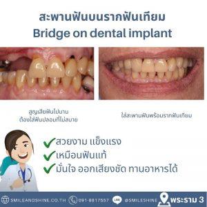 สะพานฟัน-รากฟันเทียม2
