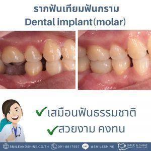รากฟันเทียมฟันกราม-หมอนลัท