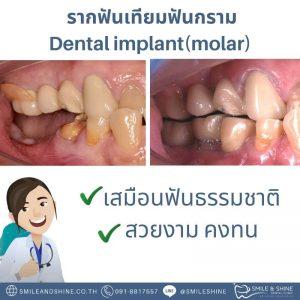 รากฟันเทียมฟันกราม-หมอนลัท2