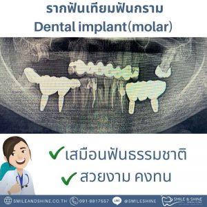 รากฟันเทียมฟันกราม-หมอนลัท4