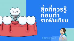 สิ่งที่ควรรู้ก่อนทำรากฟันเทียม