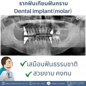 รากฟันเทียมฟันกราม-หมอนลัท3