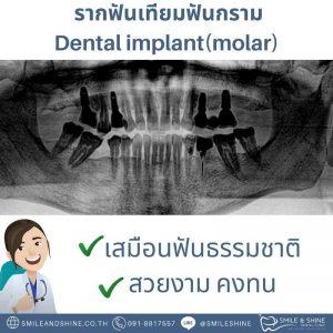 รากฟันเทียมฟันกราม-หมอนลัท6