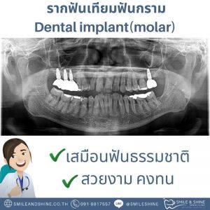 รากฟันเทียมฟันกราม-หมอนลัท5