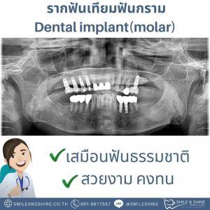 รากฟันเทียมฟันกราม-หมอนลัท7