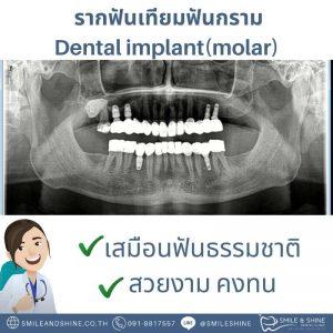 รากฟันเทียมฟันกราม-หมอนลัท9