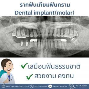 รากฟันเทียมฟันกราม-หมอนลัท8