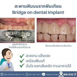 สะพานฟันบนรากฟันเทียม