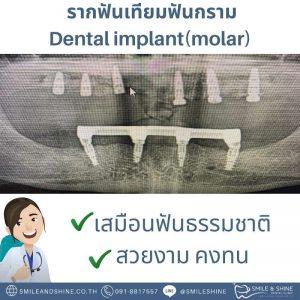 รากฟันเทียมฟันกราม-หมอนลัท10
