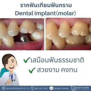 รากฟันเทียมฟันกราม-หมอนลัท11
