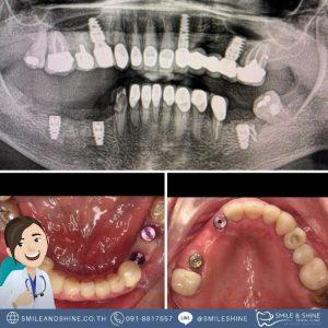 รากฟันเทียมฟันกราม-หมอนลัทใน