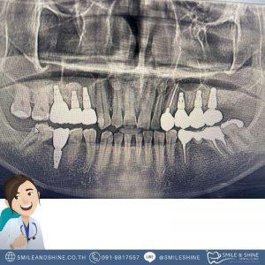 รากฟันเทียมฟันกราม-หมอแอ้น