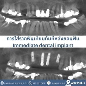 รากฟันเทียม-ฟันหน้า