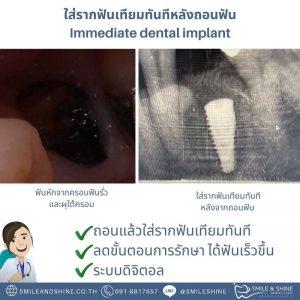 รากฟันเทียม-หลังถอนฟัน