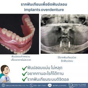 รากฟันเทียมติดฟันปลอม