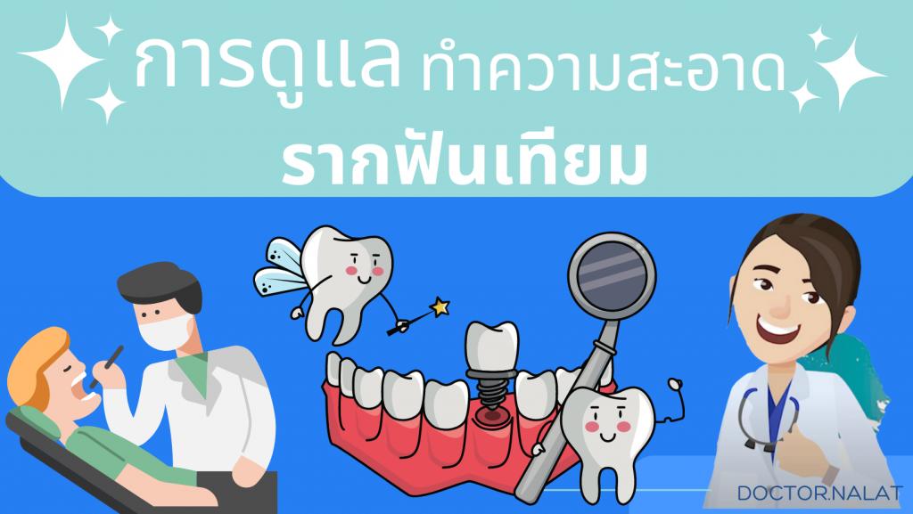 การดูแลทำความสะอาดรากฟันเทียม