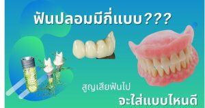 ฟันปลอมแบบไหนดี